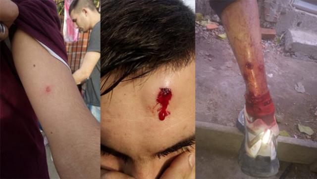 La policía de Vidal baleó a chicos de un merendero de Tigre