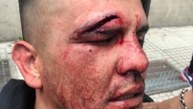 Brutal represión en el acampe en la 9 de julio: heridos, gases y detenidos